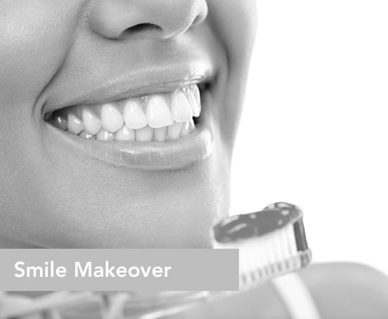 MAKEOVER YOUR SMILE